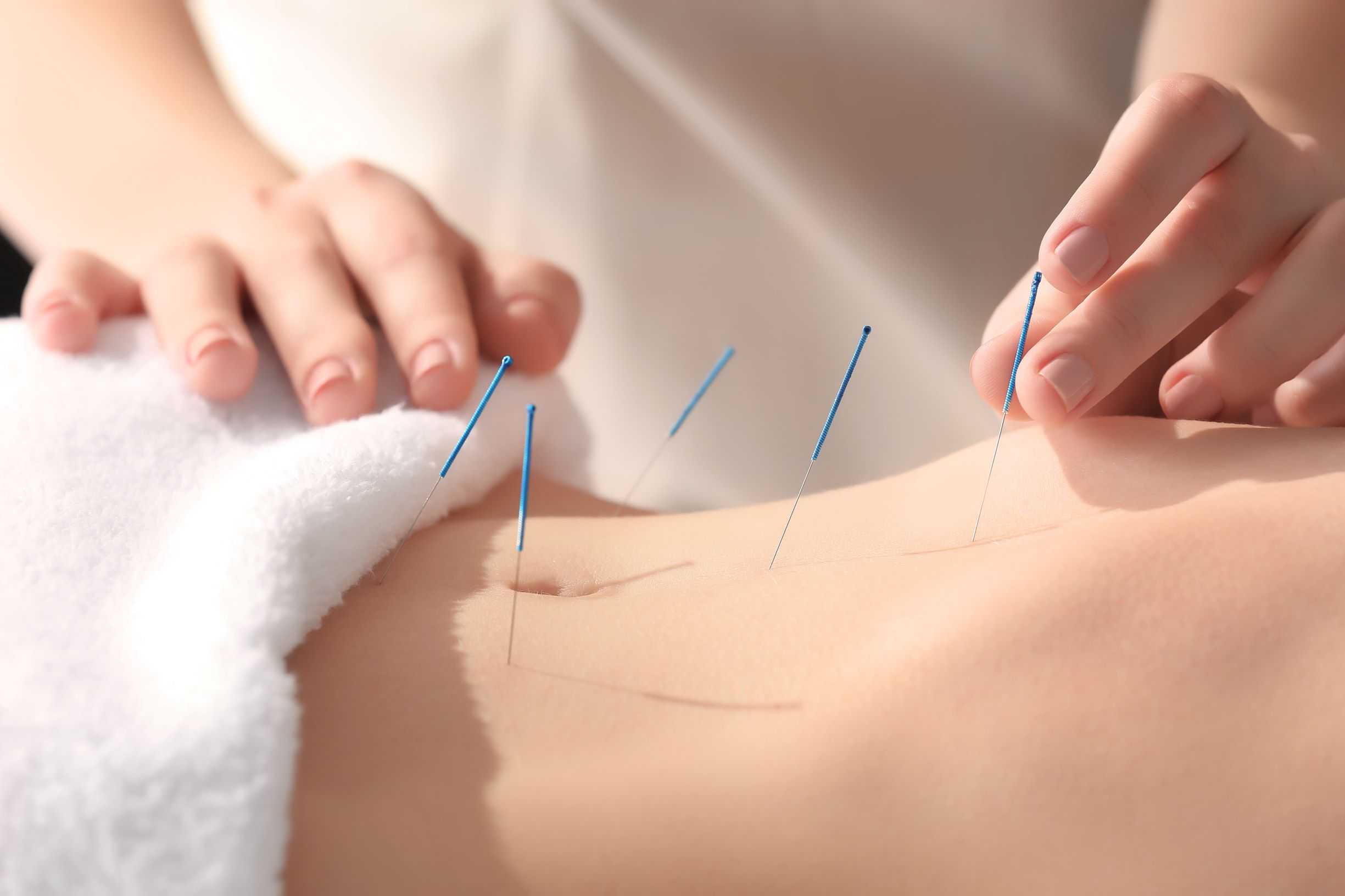 woman having acupuncture done for fertility